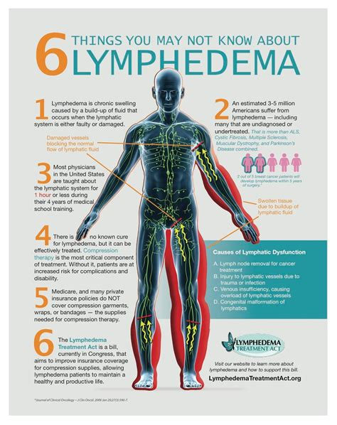 This Is A Really Informative Info Graph About Lymphedema