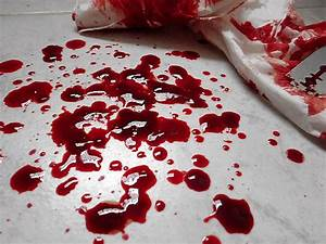 Bleeding Hand Cut In Love | www.imgkid.com - The Image Kid ...