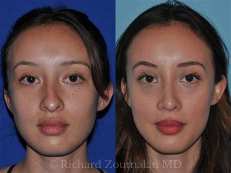 rhinoplasty nose surgeon job doctors surgeons jobs before surgery