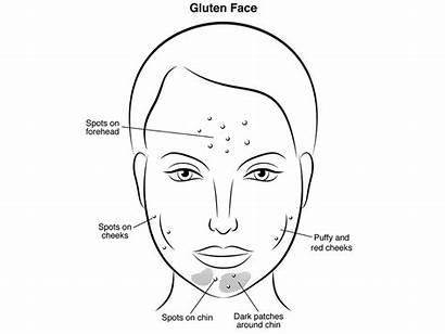Sugar Face Skin Spots Cheeks Puffy Dark