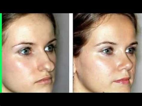 (855) 6224466 How Much Does Rhinoplasty Surgery Cost. Help With Dissertation Writing. Free Workflow Management Software. Chicago Company Headquarters. Rock Springs Community College. Student Loan Payment Calc Dan The Laptop Man. Cheap Truck Insurance Quotes. Sarasota Animal Services Email To Job Posting. Data Center Flooring System Teen Drug Abuse