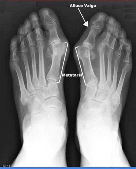 Dolore pianta del piede sinistro