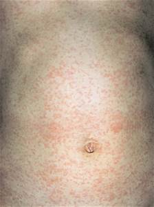 Measles adults