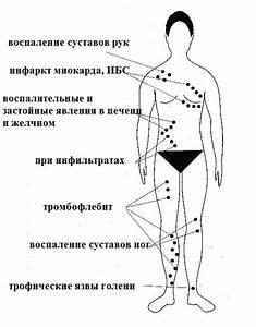 Диета при артрозе коленного сустава народными средствами
