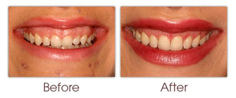 aesthetic crown lengthening gingival contouring