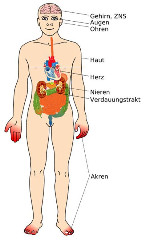 dateimorbus fabry affected organssvg wikipedia