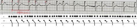 Ecg Rhythms Atrial Fibrillation With Entrance Block
