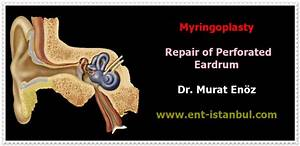 Myringoplasty Operation In Istanbul  Turkey