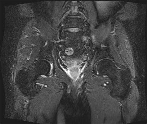 magnetresonanztomographie mrt spezialuntersuchungen