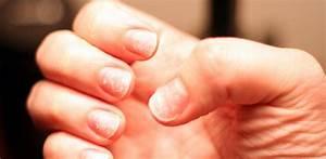 Средство против грибка ногтей дешевое