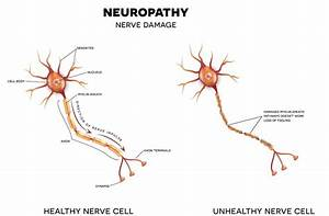 Syndromes Mimic Nerve Entrapment Of Peripheral Neuropathy