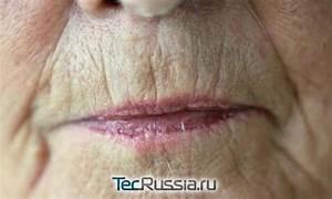 Мазь от морщин над губой