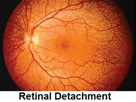 Retinal Detachment Causes, Symptoms, Diagnosis And. Web Design Freelance Work Sharepoint Web App. Independent Car Warranty Clean Vents In House. University Of Houston Victoria. Apartment For Rent Paris Vacation. Saint Simon And Jude West Chester Pa. Personal Social Media Strategy. Hair Loss Specialist Los Angeles. Dance Of The Deer Foundation