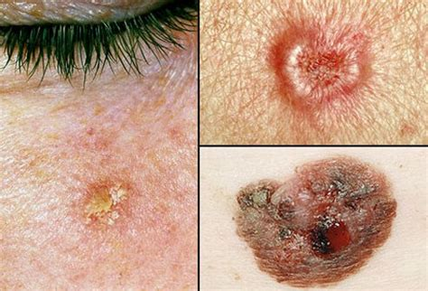 picture  skin cancer picture image  rxlistcom