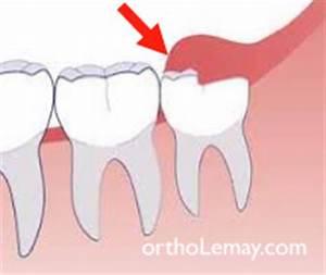 Douleurs Dents De Sagesse : sympt mes associ s aux dents de sagesse b cco ~ Maxctalentgroup.com Avis de Voitures