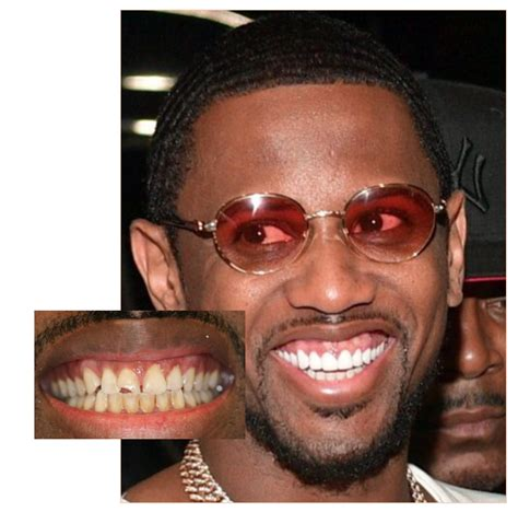 how cardi b teeth use to look rappers teeth before and after www pixshark images