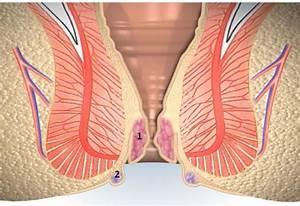 Медицинский прибор от простатита эретон