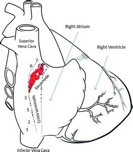 112 Location Of Subsidiary Atrial Pacemakers Following Ablation Of The Sinus Node In The Goat