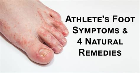 Athlete's Foot Symptoms & 4 Natural Remedies  Davidwolfem. Bible Story Wall Murals. Campervan Stickers. Get Coupons Online. Mechanical Drawing Lettering. Last Supper Stickers. Persistent Depressive Signs. Blue Line Logo. Marathi Movie Logo