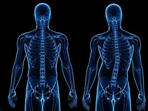 Adult Scoliosis Is A Continuation From Childhood