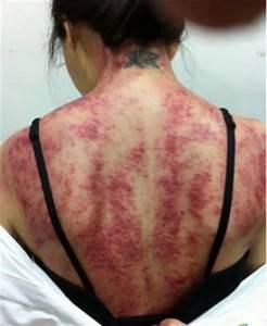 Gua Sha: Gruseliges Foto einer Gua Sha Behandlung