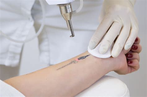 laser tattoo removal work  facts