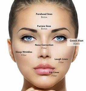 Botox vs no botox