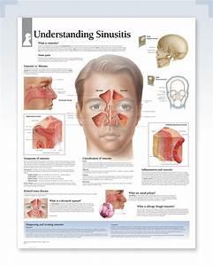 Understanding Sinusitis Exam