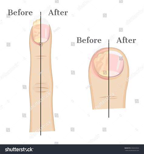 Fungal Infection Nails Illustration Before After Stock