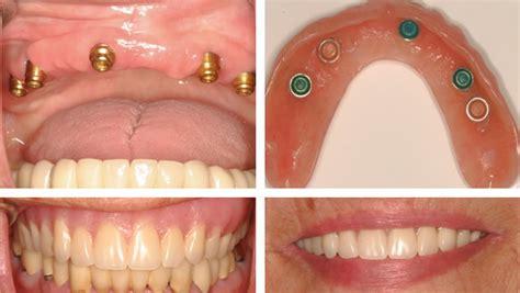dental implants fullerton ca regenerative solutions