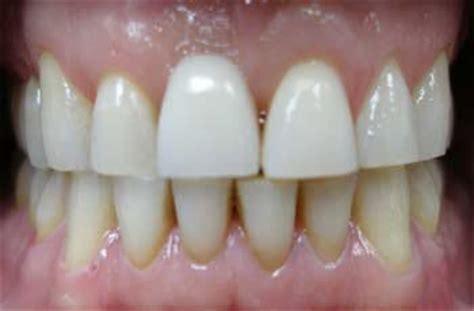 dental cosmetic  teeth whitening service gallery