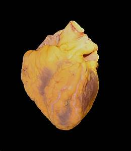 File:Human heart male adult autopsy.jpg - Wikimedia Commons