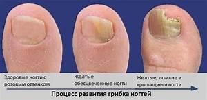 Грибок на ногтях фотки