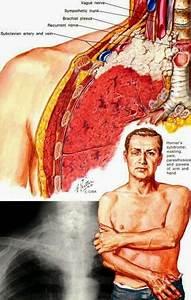 Abc Radiology Blog  Pancoast U2019s Syndrome