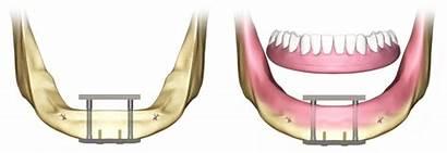Dental Implant Implants Trans Implante Implantes Subperiosteal