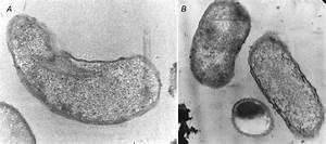 Electron Microscope Bacteria Cell