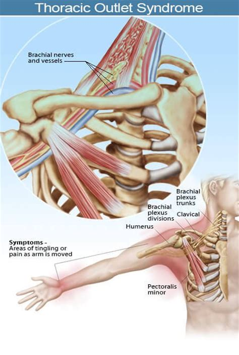 Thoracic Outlet Syndrome Symptoms, Surgery And Tests. New York Hair Transplant Cost. Online Courses For Hotel Management. Painting Over Powder Coat Guar Gum Viscosity. Virginia Beach Legal Aid Webex Join A Meeting. Photo Hosting Software Bmw Rally Car For Sale. Certified Retirement Financial Advisor. Edna Brewer Middle School System Heat Monitor. Workers Comp Philadelphia On Line Payday Loan