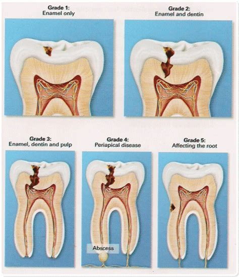 human teeth  dental decay biology notes  igcse