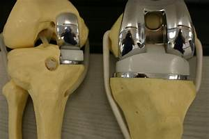 Govt Cracks The Whip  Fixes Ceiling Prices Of Orthopaedic Knee Implants
