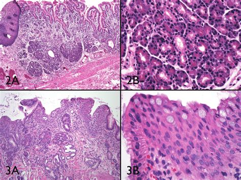 Multilayered Epithelium May Be Detected At The Luminal