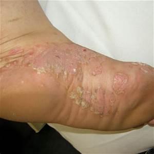 Palmoplantar pustulosis -any tips for daily life?