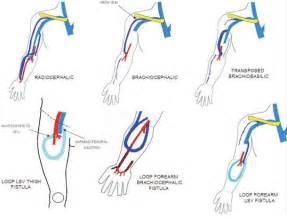 AV Fistula for Dialysis Ultrasound
