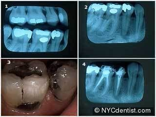 root canal infection   periapical abscess  pain