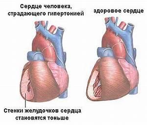 Негормональные препараты от атопического дерматита