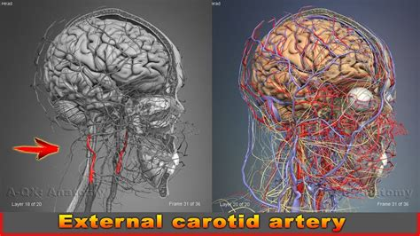 You have one of these arteries on each side of your neck. External carotid artery | Arteries of head and neck | 3D ...