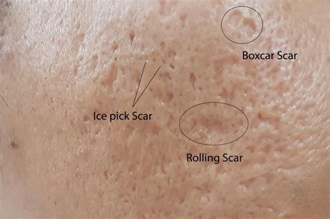 Acne Scar Treatment - Acne Scar Removal - Read more