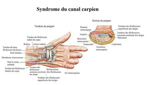 douleur au poignet droite ou gauche et tendinite