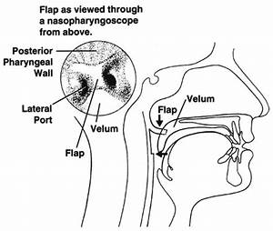 Nasopharyngoscopic View Of Velopharyngeal Port And Flap