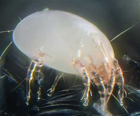 Dust Mite Bites, Symptoms, Treatment & Pictures On Humans