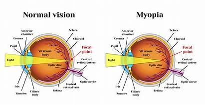 Myopia Eye Vision Diagram Normal Hyperopia Presbyopia